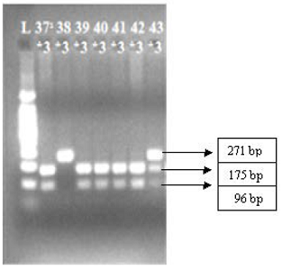 PCR-restriction enzyme (BamHI digestion)