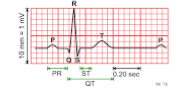 ECG tracing with all waves and intervals