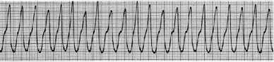 ECG-1 tracing, showing Ventricular Tachycardia