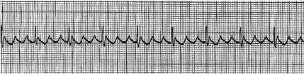 ECG-3 tracing, showing Atrial Flutter