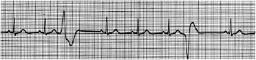 ECG-4 tracing, showing Premature Ventricular Complexes