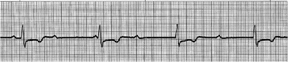 ECG-5 tracing, showing Third Degree Heart Block