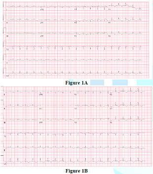ECG after hyperkalemia correction
