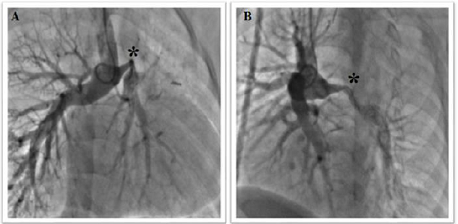 Pulmonary angiography
