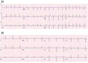 46 year old patient developed pericarditis and atrial fibrillation