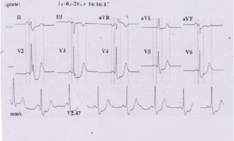 STEMI- Pre-acute infero posterior MI with reciprocal changes in anterior leads