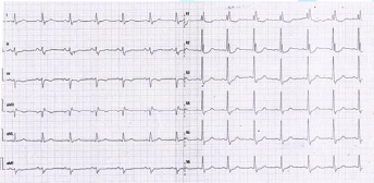 STEMI- Post- ST settling down in inferior leads