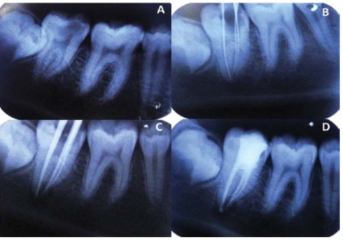[A] Intraoral Peri-apical, pre-operative diagnostic radiograph showing permanent mandibular left second molar with complex root anatomy. [B] Working length determination [C] Master cone selection [D] Post-obturation radiograph.