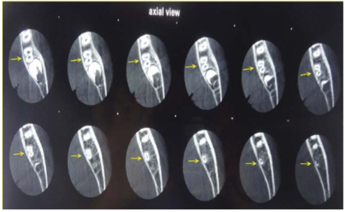 Serial axial sections of CBCT imaging of the permanent mandibular left second molar. Initially we can see the two canals. As the canals progress apically merging of two canals resulting in one canal can be seen (arrows).