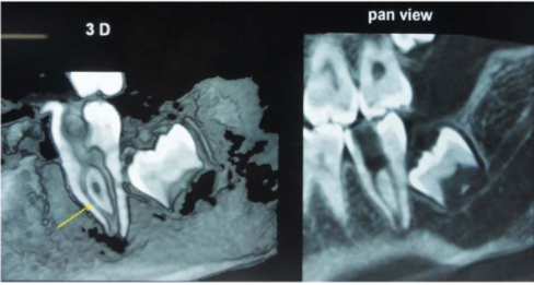 CBCT image of the same tooth (37) showing Vertucci type II canal configuration (2-1) and also 'S' shape bend in the mesial canal (arrow).