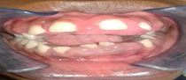 Intraoral photograph showing gingival enlargement.