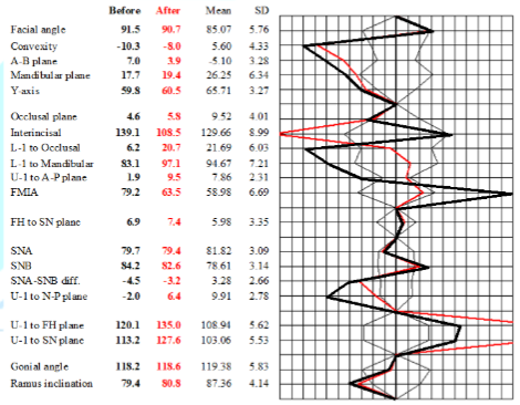 Cephalometric analysis. Black and red lines indicate positions before and after treatment, respectively.