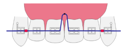 The crossbite arch. Two stoppers were placed on the medial sides of both the upper canines. A U loop was placed between #11 and #21.
