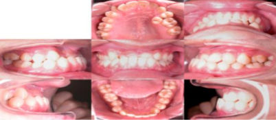 Intraoral photographs before treatment.