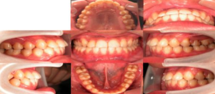 Intraoral photographs after treatment.