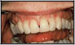 NCLS at the Gingiva Due to Compression and Tension.