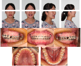 After 9 months treatment, miniscrews were placed in the zygomaticoalveolar bimaxillarily.