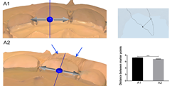 Three-dimensional preview and two-dimensional measurement diagram of group A. ***P <0.001.