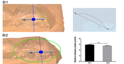 Three-dimensional preview and two-dimensional measurement diagram of group B. ***P <0.001.