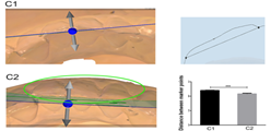 Three-dimensional preview and two-dimensional measurement diagram of group C. ***P <0.001.