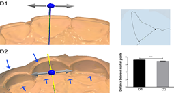 Three-dimensional preview and two-dimensional measurement diagram of group D. ***P <0.001.