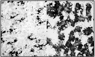 Demonstration of G-6-Pase activity in livers from animals treated with HCG. The left micrograph has been taken from a male the liver glycogen content amounted to 23% of the liver wet weight. In this micrograph there is very little enzyme activity present (black arrows). The right micrograph has been taken from a female, whose liver glycogen content in the vitellogenic phase (after HCG induced ovulation) had dropped to 3%. The G-6-Pase activity appears to be rather high (white arrows). Magnification:  800.