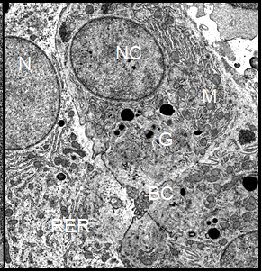 (Right) Hepatocytes from an HCG treated Xenopus female. In these cells, the glycogen content is drastically decreased. Some cisternae of the rough endoplasmic reticulum are torn apart and scattered in fragments throughout the cytoplasm. The nuclear membrane shows no undulations and the nucleus contains dispersed chromatin, indicating an enhanced cellular activity. Magnification:  4700.