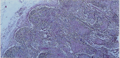 General view of lymph-nodes showing structural modifications