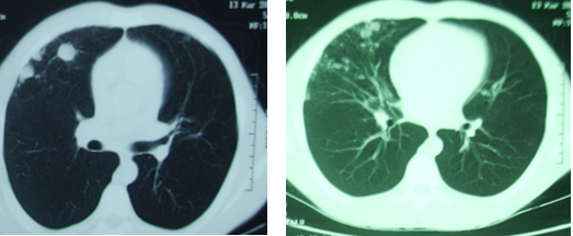 Noduler sequela was seen on the patients chest tomography in the sixth month, after discharge