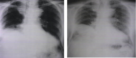 Chest radiographs of the patients admission to hospital and hospital discharge