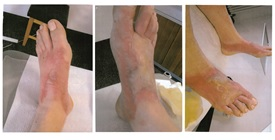 The three photos show the phototoxic reaction after a herbal foorbath with Buguzhi under sun radiation. Both feet of the patient show redness and blebs
