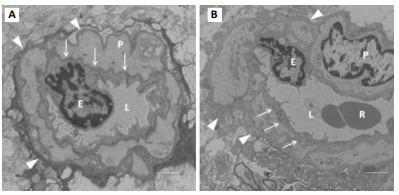 TEM section of cerebral capillary