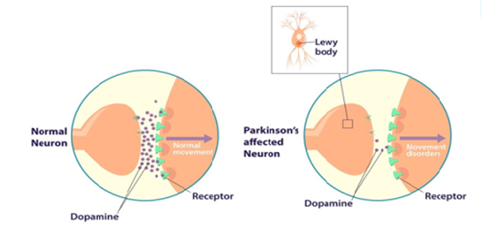 Dopamine levels in a normal and a Parkinson's affected neuron.