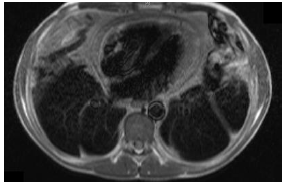 Section of cardiac MRI (T1-weighted) showing a chronically thickened and inflamed pericardium globally