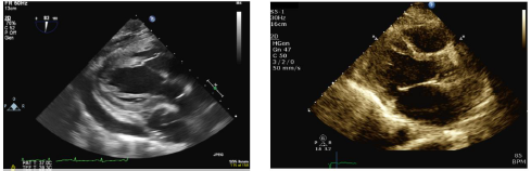 Echocardiogram images pre- (left) and post-Pericardiectomy (right)