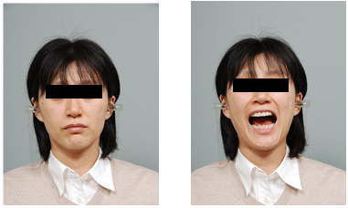 Facial photo with mouth closed (left) and opened (right).