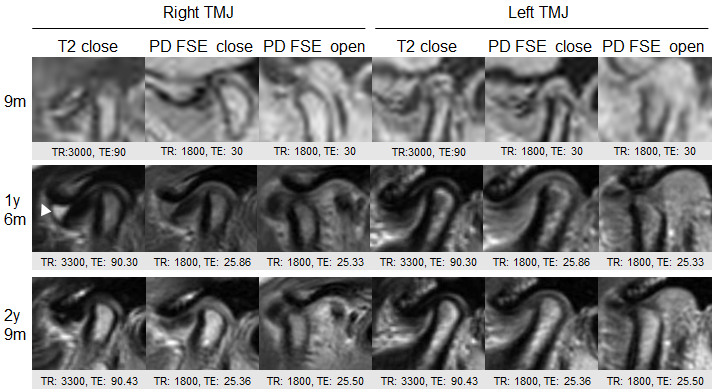 MRI of the right and left temporomandibular joints at 9, 18, and 33 months