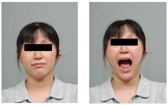 Facial photo with mouth closed (left) and opened (right) at 2 years.