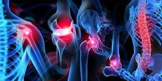Image of Orthopedics