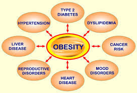 Image explains about Obesity