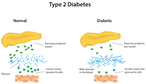 Image explains about Type 2 Diabetes
