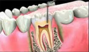 Image of Conservative dentistry, Source - Wikipedia