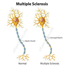 Image explains about Multiple sclerosis