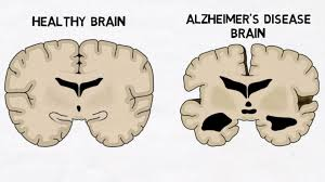 Image explains about Alzheimers disease