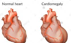 Image showing the difference between normal heart and Enlarged Heart