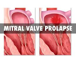 Image showing the Mitral valve prolapse