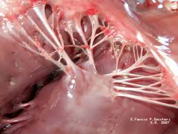 Image of Chordae tendineae