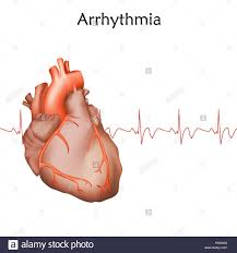 Arrhythmia management