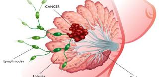 Image explains about Breast cancer
