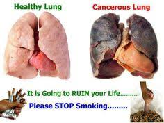 Image explains about Lung cancer
